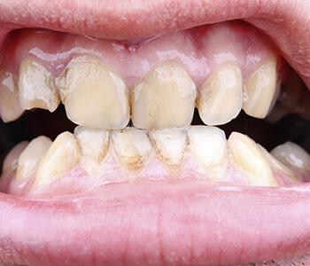 Gum Disease Therapy Houston TX
