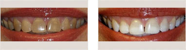 Teeth Whitening Before and after 02