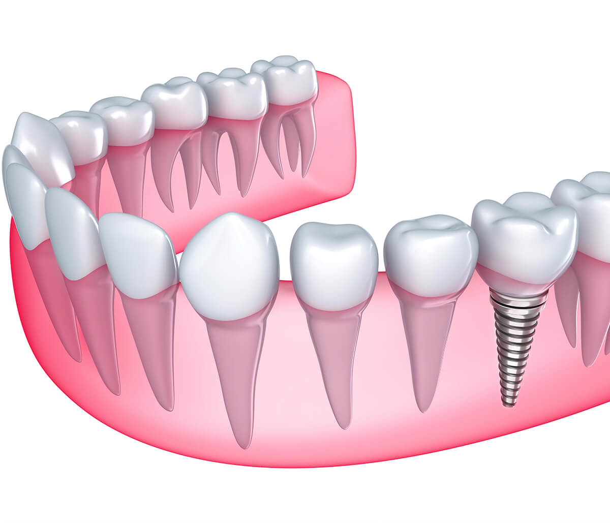 Houston, TX dentist describes the dental implants procedure and process