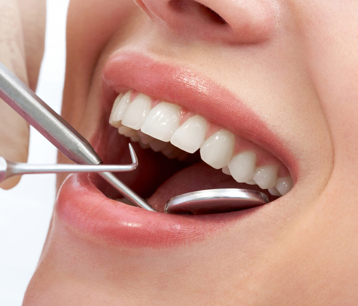 Houston, TX dentist explains the root canal procedure process.