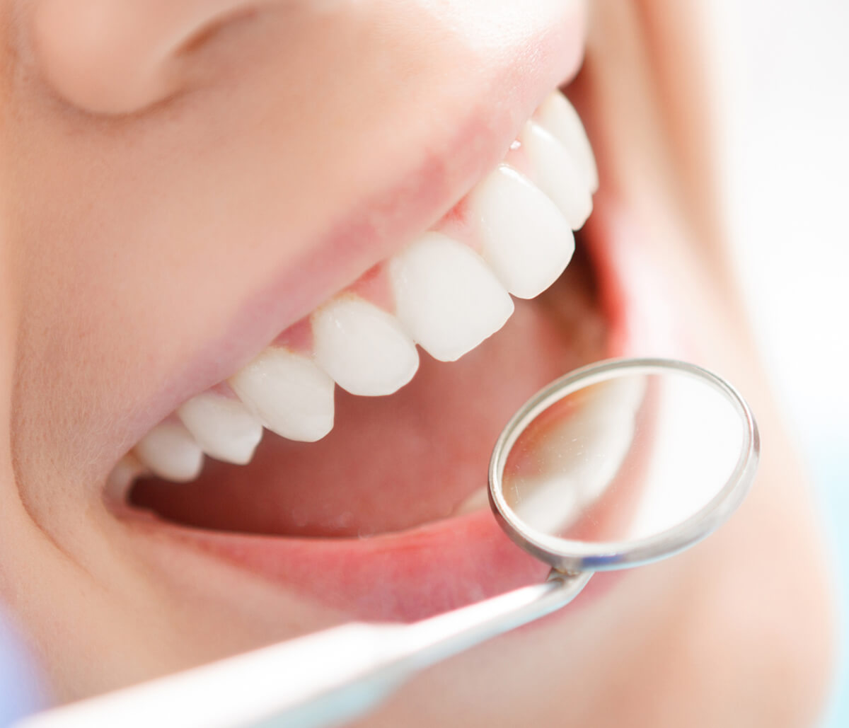 Why Use a Professional Teeth Whitening Dentist in Houston TX Area?