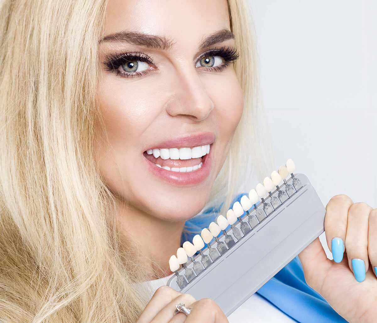 What is the Best Way for You To Pay For Veneers in Houston TX Area?