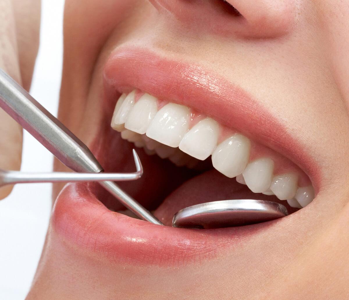 Best Practices in Teeth Extraction in Houston, TX Area