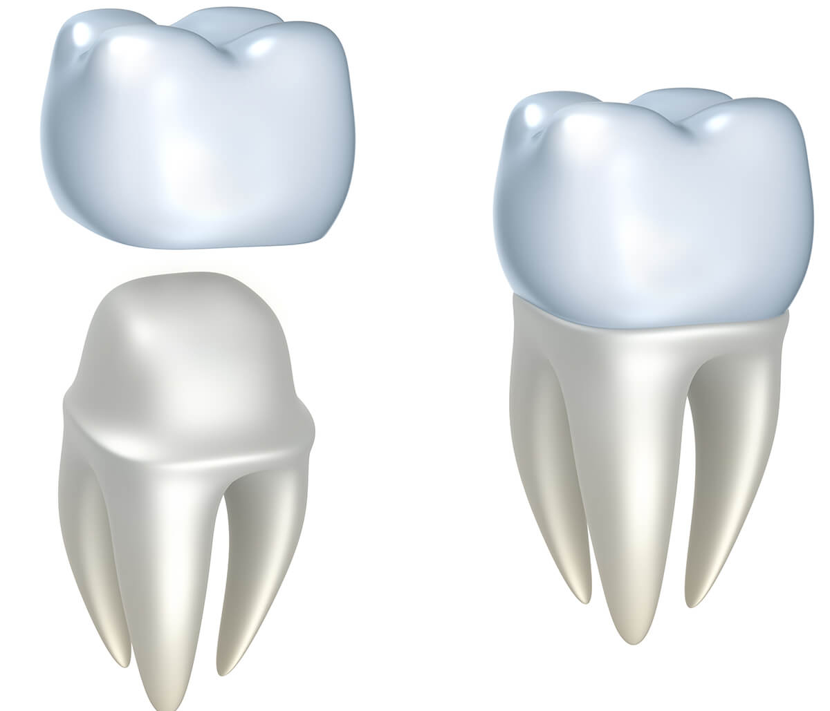 Crowns for Teeth in Houston Texas Area