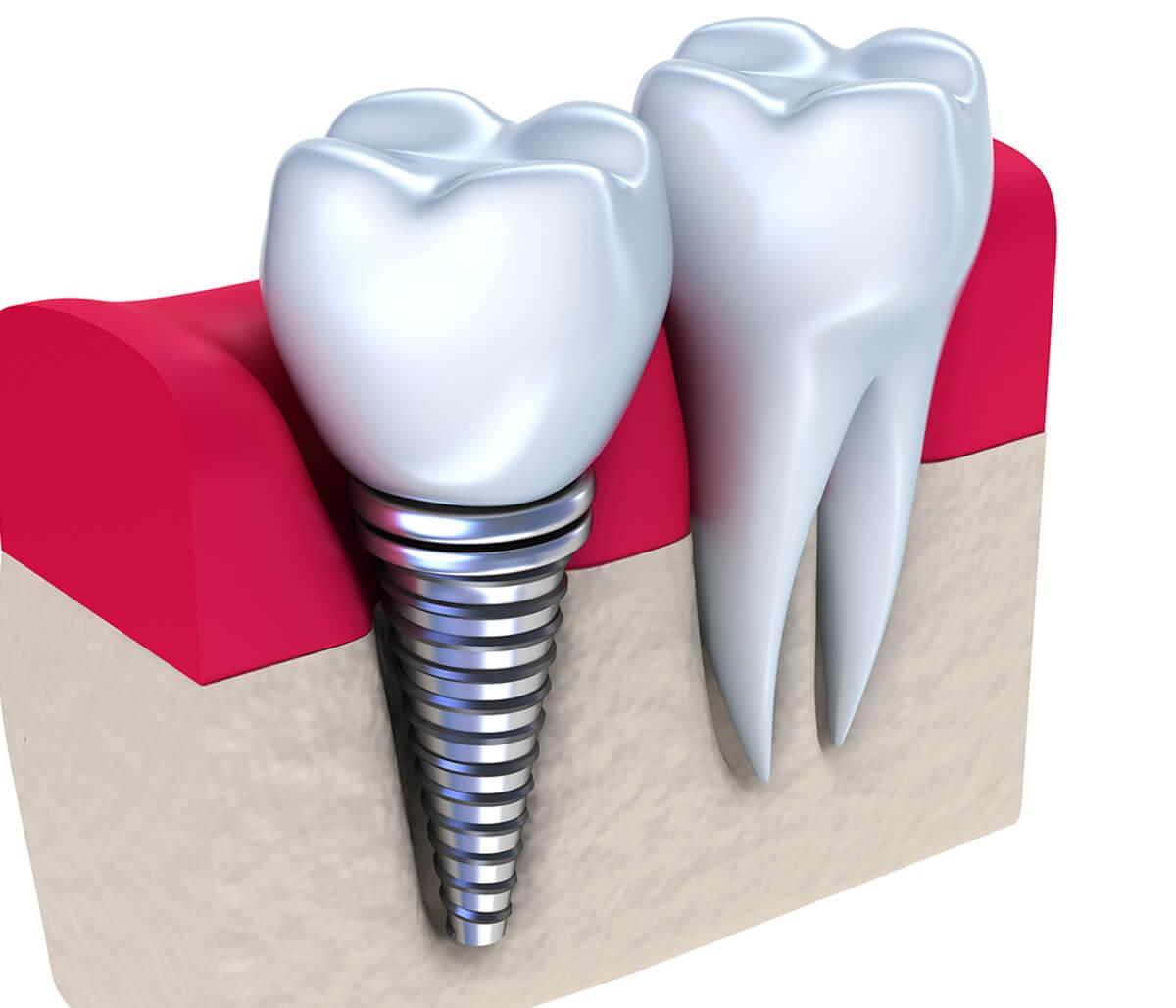 Dental Implants Dentist in Houston Texas Area