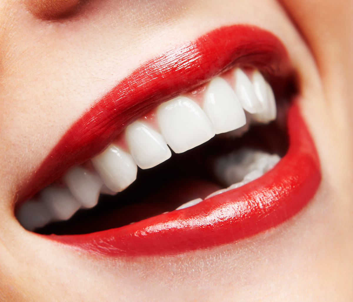 Some Professional Teeth Whitening Tips in Houston Area